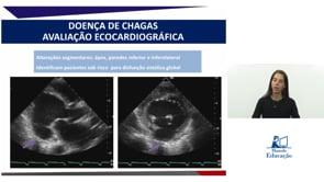 [DIC] Avaliação ecocardiográfica da doença de Chagas