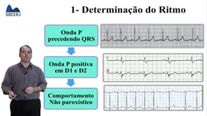 Curso Básico de ECG – Aula 03: Confecção de Laudo Eletrocardiográfico