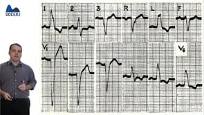 Curso Básico de ECG – Aula 05: Bloqueios de Ramo