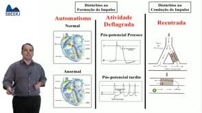 Curso Básico de ECG – Aula 07: Introdução as Arritmias