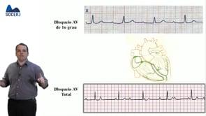 Curso Básico de ECG – Aula 08: Distúrbios de Condução AV