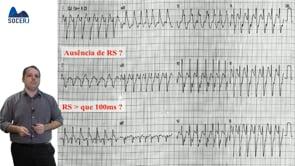 Curso Básico de ECG – Aula 10: Taquicardias de QRS Alargado