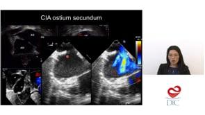 Do ponto de vista ecocardiográfico o que importa saber com relação as cardiopatias congênitas no adulto