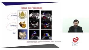 Ecocardiografia nas próteses valvares