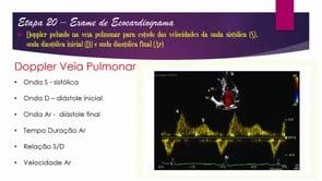 [ESCOLA DE ECO] Eco de Excelência – Ep. 20 – Doppler da Veia Pulmonar