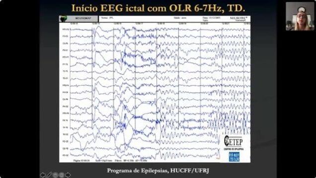[ABN RJ] EEG das Epilepsias